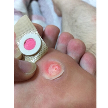 6pcs/ box Feet Care Medical Plaster Foot Corn Removal Plaster Health Care For Relieving Pain Foot Massage & Relaxation