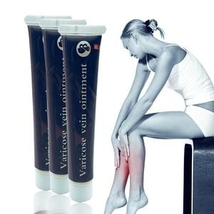 Image 1 - Varicose Veins Treatment Cream Effective cure Vasculitis Phlebitis Spider Veins Pain Varicosity Angiitis ointment Health Care