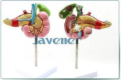 Human Anatomical Duodenum Anatomy Medical Pathology Model Digestive system