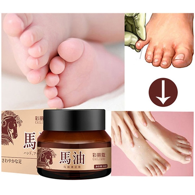 horse oil feet cream care cream for athlete s foot feet itch rh aliexpress com Itchy Rash On Feet Itchy Toes