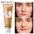MEIKING Aloe Vera Gel día cremas 80g Anti Winkle blanqueamiento hidratante Anti acné tratamiento aceite Control cara crema piel cuidado