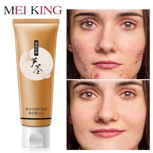 MEIKING Aloe Vera Gel Day Creams 80g Anti Winkle Whitening Moisturizing Anti Acne Treatment Oil Control Face Cream Skin Care