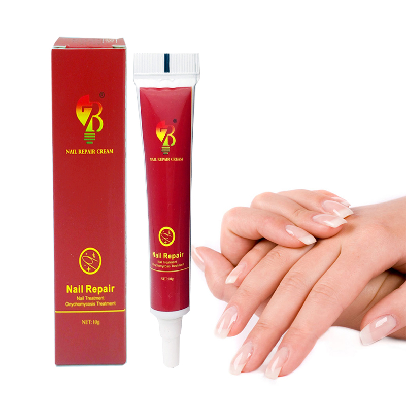 Best Chinese Medicine Herbs Nail Treatment Cream Paronychia Anti Nail Infection Fights Bacteria And Naturally 3