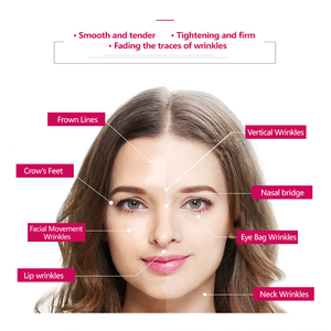 Image 5 - Nanoskin terapia de fotones RF para rejuvenecimiento de la piel, masajeador de vibración Facial, máquina de mesoterapia EMS Ion