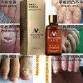 Оригинал MeiYanQiong Грибковых Ногтей Лечение Сущность Ногтей и Ног Отбеливание Грибок Ногтя Пальца Ноги, ProfessionRemoval По Уходу За Ногами Ногтей Гель