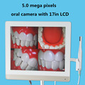 Alta Qualidade 5.0 mega pixels de 17 polegadas LCD monitor com usb endoscópio Dental intra oral câmera tudo em uma máquina