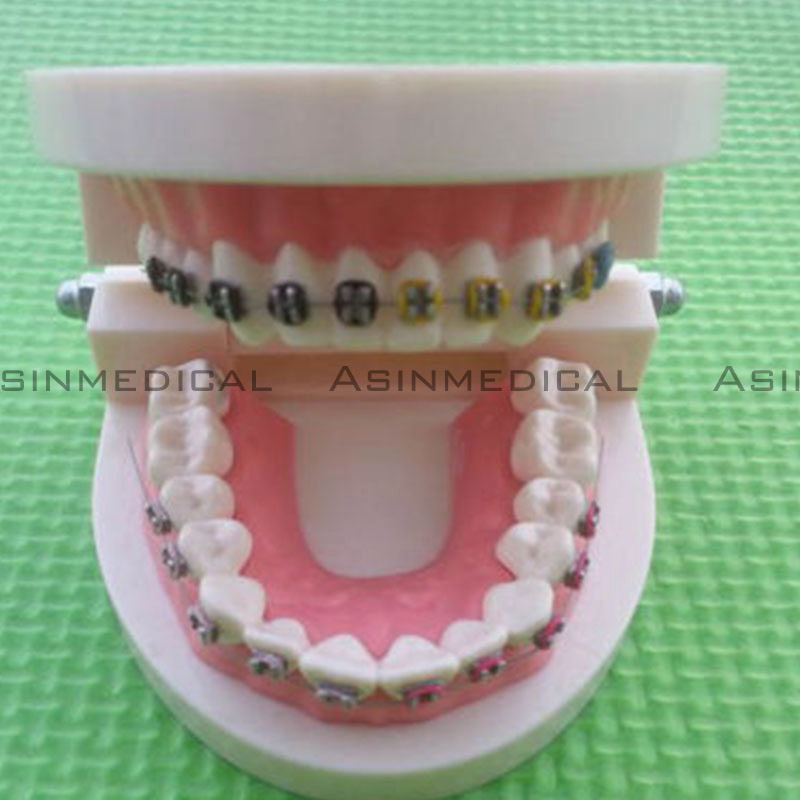2016 Dental Orthodontic Study Teeth Model With Metal Brackets Simulation Teeth Model teeth 2016 dental orthodontics typodont teeth model half metal half ceramic brace typodont with arch wire