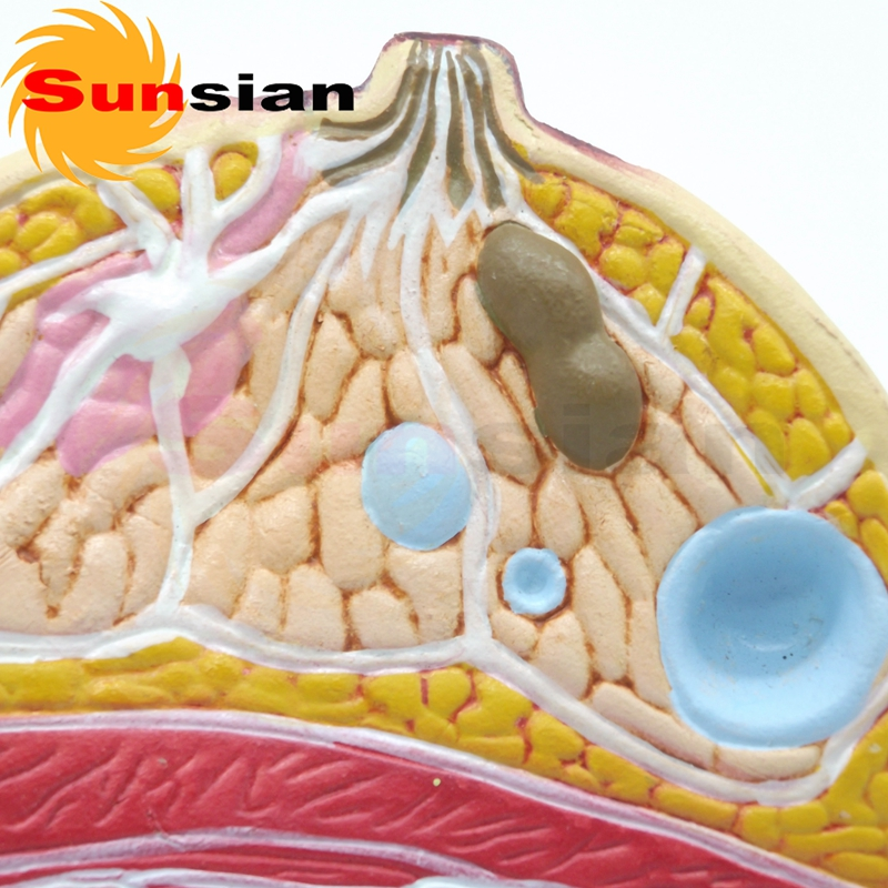 The model of breast pathology ,anatomical model,anatomy model ...