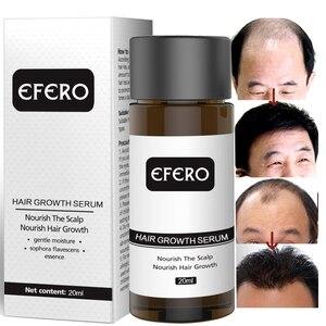 Image 4 - EFERO esencia para el crecimiento del cabello, tratamiento para prevenir la pérdida de cabello, suero para el crecimiento del cabello denso y suave, cuidado de la salud, 20ml