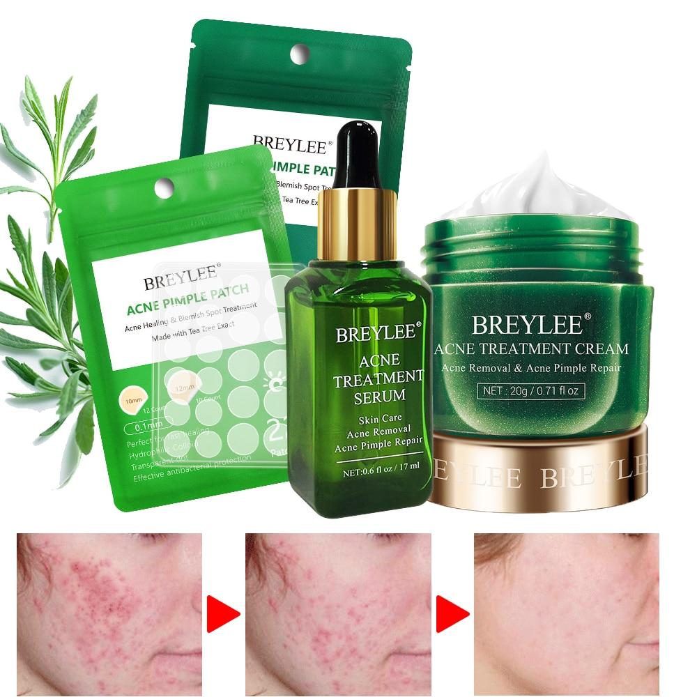 BREYLEE AcnePimple Patch Acne Treatment Serum Acne Cream Pimple Remover Tool Skin Care Face Cream Facial Serum Essence Face Mask