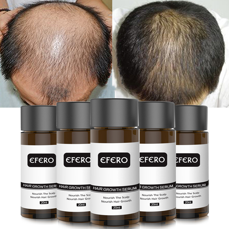 Image 4 - EFERO Powerful Hair Growth Essence Hair Loss Products Essential Oil Baldness Treatment Preventing Hair Loss Hair Care Grow 20ml-in Hair Loss Products from Beauty & Health