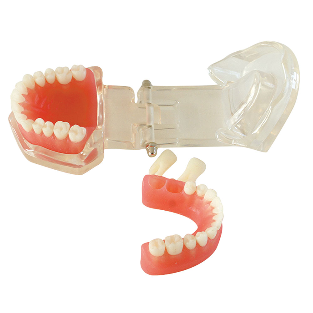 Dental Model 28 unit Teeth Soft Gum Without Screw Every Part Can be Removed Good for Study dental teaching model caries model of child gum can be removed