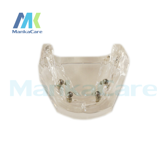 Transparent model. using different implants Oral Model Teeth Tooth Model