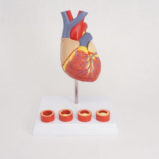 Tamaño de la vida anatomía del corazón humano modelo con 4 etapa ...