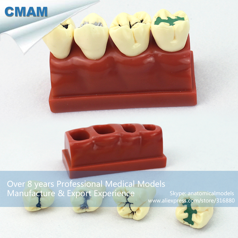 12590 CMAM-TOOTH17 Dental Pit and Fissure Sealing Treatment Tooth Study Model,  Medical Science Teaching Anatomical Models 12569 cmam dental10 cranial nerve model in oral cavity medical science educational dental teaching models