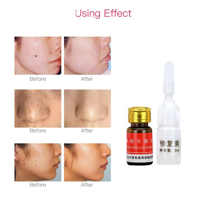 Maternity Supplies Eye Essence Removal Face Wart Tag Freckle Removal Cream Oil Mole Skin Removal Painless Safety Pregnancy Care