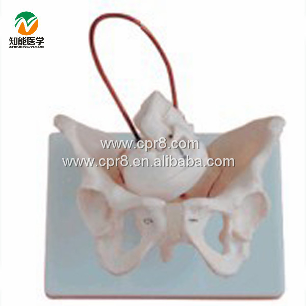 BIX-A1026 Female Pelvis Model With Fetal Skull, Midwifery Bone Model G019 hot midwifery teaching model birth demonstration model pelvis with fetal head skull model