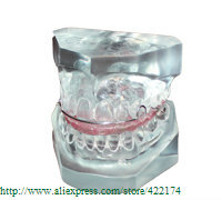 Free Shipping Orthodontics treatment model dental odontologia products teeth dentist dentistry Tyodont Model цены