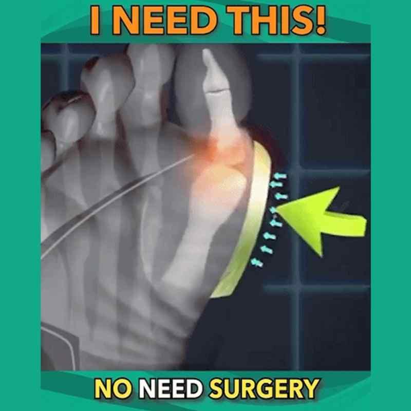 Женская обувь Искусственный тапочки ортопедические корректор шишки на большом пальце удобные на плоской платформе, Дамская обувь Повседневное большой коррекция носка сандалии