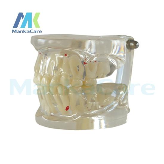Limpar Mista Idade com Patologia Oral Modelo Modelo Dente Dentes dentes de Leite alternando modelo Dental Modelo Teeth com Restauração Bri