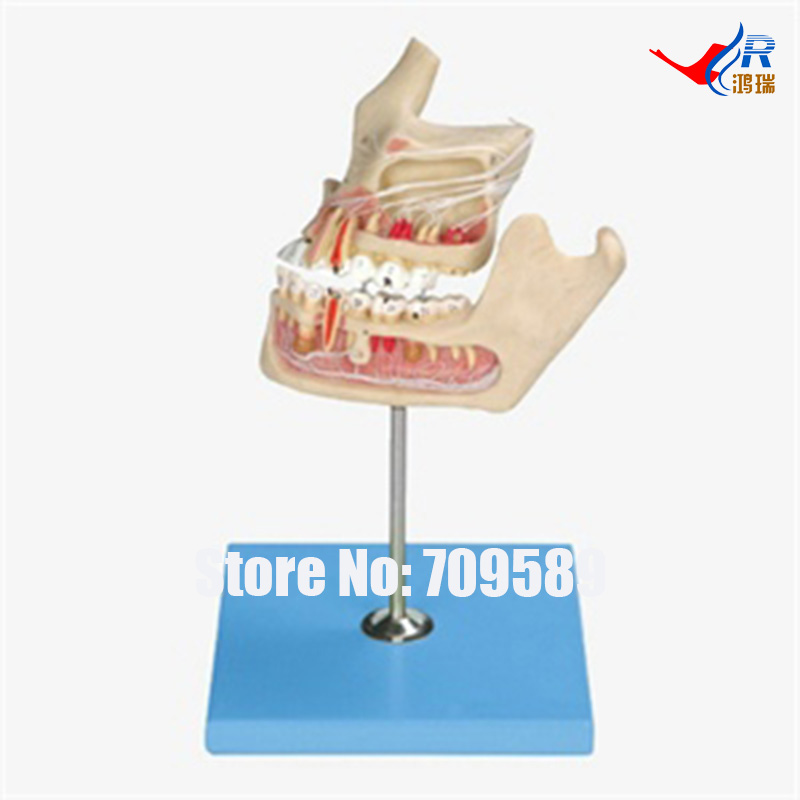 Pathologic Tooth with Jaw, Teeth Model teeth orthodontic model ceramic braces wrong jaw demonstration model orthodontics practice model