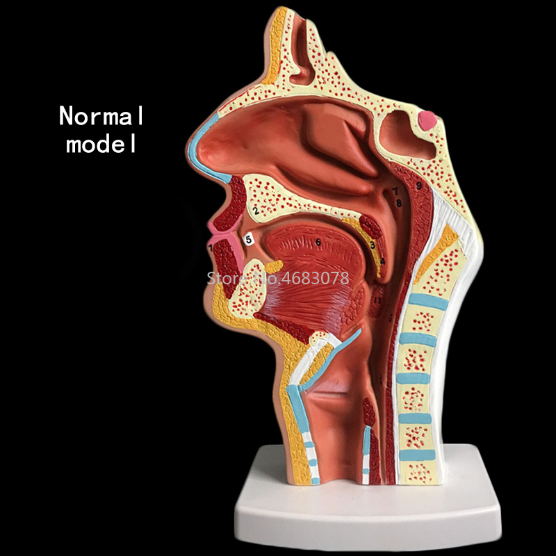 Normal/pathological Anatomy Model Of The Nasopharyngeal Cavity In The Nasal Cavity And Throat Of Human Body 24x12x12cm