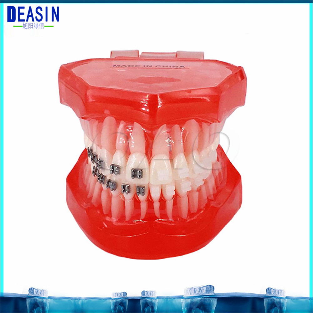 Teeth Model with Metal Irregular Tooth Ortho Metal Dentist Patient Student Study Teaching Teeth Model Caries Tooth Care caries tooth model dentist patient communication anatomy model dentistry rich details teaching aids equipment