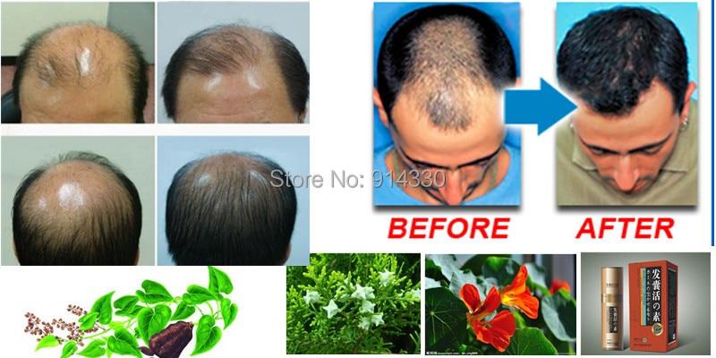 11ml/Pack Boost Hair growth loss uct Hair growth uct ...