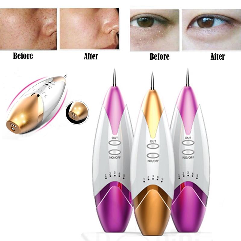 reviews ultrasonic facial