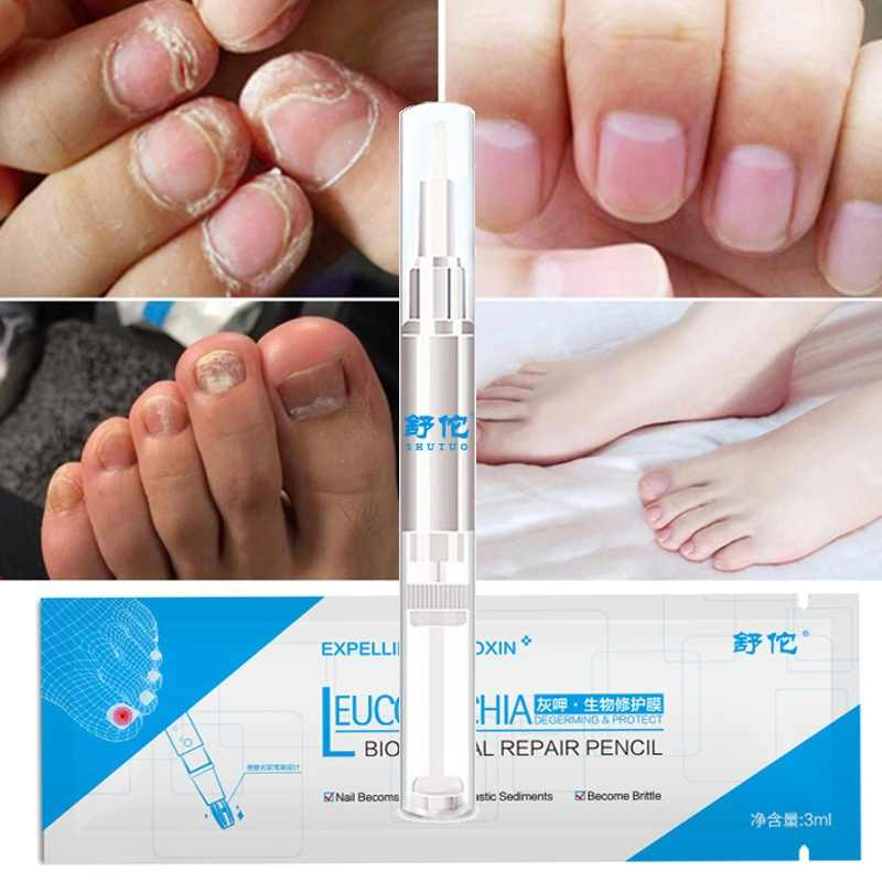 פטרת טיפול נוזל תרופה מסמר פטרייה טיפול רגליים טיפול מהות הלבנת הבוהן מציפורני רגל פטרייה להסיר ג 'ל TSLM1