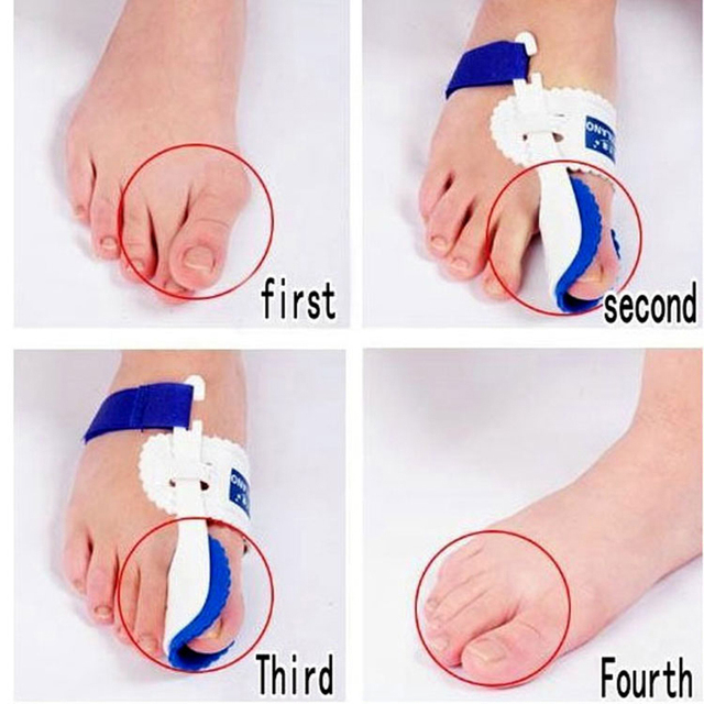 Bunion Device Hallux Valgus Orthopedic Braces Toe Correction Night Foot Care Corrector Thumb Goodnight Daily Big Bone Orthotics Body Care