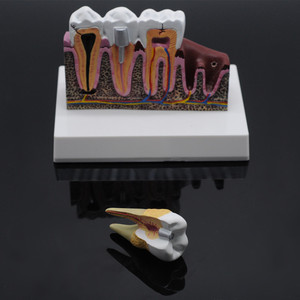 Image 4 - Dentist Lab Soft Gum Teeth Model Teeth Replacement For Study Student Practice