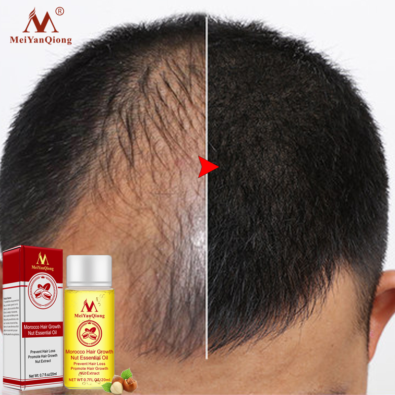 MeiYanQiong Andrea Products Oil Hair Growth Faster Grow Ginger Shampoo Stop Hair Loss