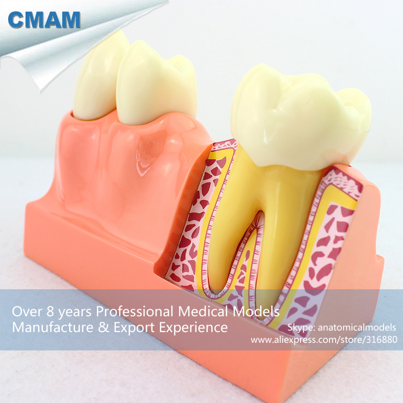 12599 CMAM-TOOTH21 Four Times Life Size Human Missing Teeth Decomposition Dental Education Model dissected model of teeth tissue teeth tissue decomposition model teeth organizational model