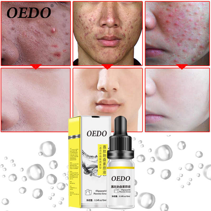 Oedo Oligopeptide Placenta Stock Solution To Remove Acne Marks Acne To Reduce Scar Control Oil Firming Moisturizing Facial Care Aliexpress