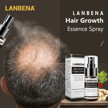LANBENA Hair Growth Essence Spray Preventing Baldness Consolidating Anti Hair Loss natural Nourish Roots Easy To Carry Hair Care(China)