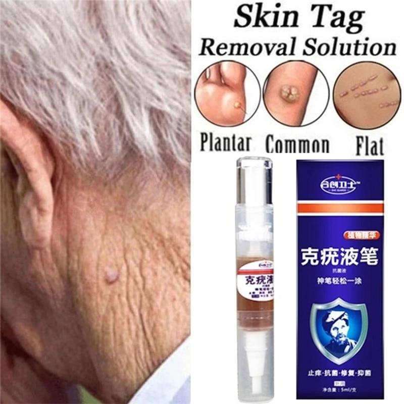warts treatment cream