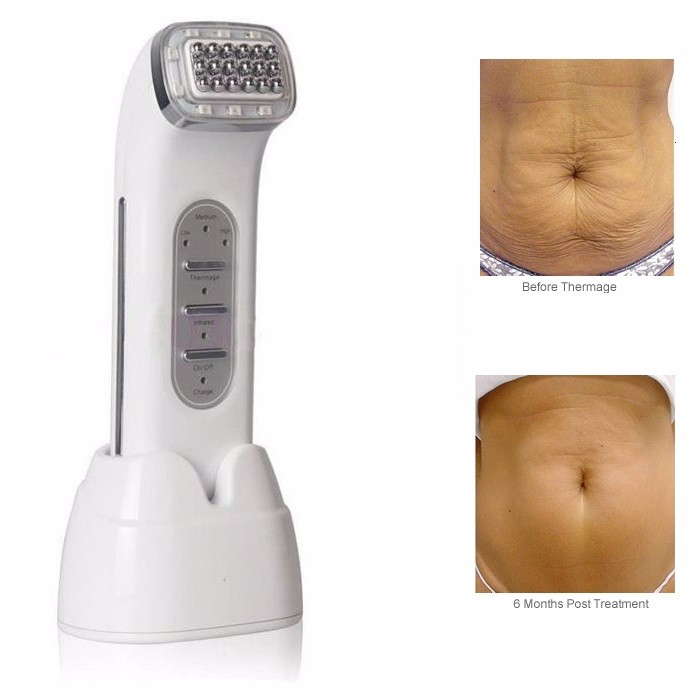 Beauty & Health Radio Frequency Skin Care Machine Skin Lifting Skin Tightening Wrinkle Removal Fractional Rf Electroporation Facial Massager Rich And Magnificent