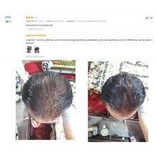 gel hair building fibers powder + hair spray 100ml hair loss growth concealer treatment keratin
