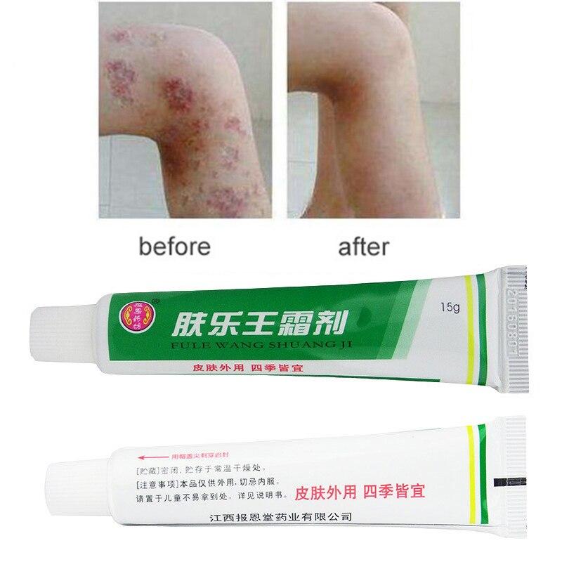 1 шт. FULEWANG SHUANGJI крем для кожи от псориаза дерматита экземы мазь для лечения псориаза крем