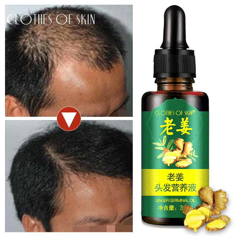 New Herbal Hair Growth Anti Hair Loss Liquid Fast Powerful Hair Growth Essence Treatment Preventing  Hair Loss Essential Oil