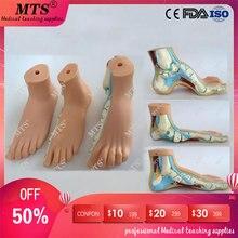 3 шт./компл. если у вас стандартная нога и плоскостопия, бант, модель стопы массажний коврик для ног патологоанатомической модель голеностопный сустав черепно-пистолет