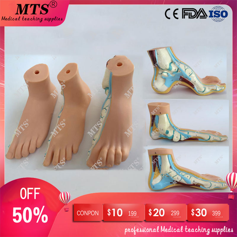 3Pcs/set Normal feet,flatfoot,Bow foot model human foot anatomical pathology model ankle joint traumatic pistol3Pcs/set Normal feet,flatfoot,Bow foot model human foot anatomical pathology model ankle joint traumatic pistol