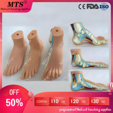 3Pcs/set Normal feet,flatfoot,Bow foot model human foot anatomical pathology model ankle joint traumatic pistol human foot bone model foot sole joints of foot ankle tibia and fibula foot model department of orthopedics teaching for medical