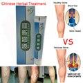 5 Pacotes de Tratamento de Varizes Médica Perna Porões Ácido Coceira Minhoca Protuberâncias Velho Perna Ruim Vasculite Creme Medicina Chinesa