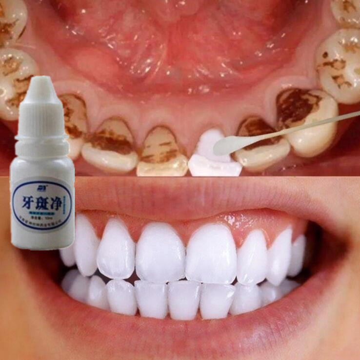 Dental Tools Teeth Whitening Essence Liquid Teeth Oral Hygiene Charcoal Teeth Whitening Cleaning Water Clareamento Blanqueador