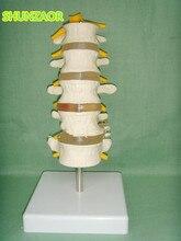 SHUNZAOR 16*9*8cm Lumbar Set (5 pcs) lumbar disc herniation demonstration model,Human lumbar model medical teaching model