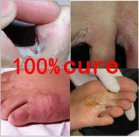 Real Store Treating Beriberi And Foot Itch Beriberi Erosion Peeling Blisters Peeling Feet Baby Foot Peeling