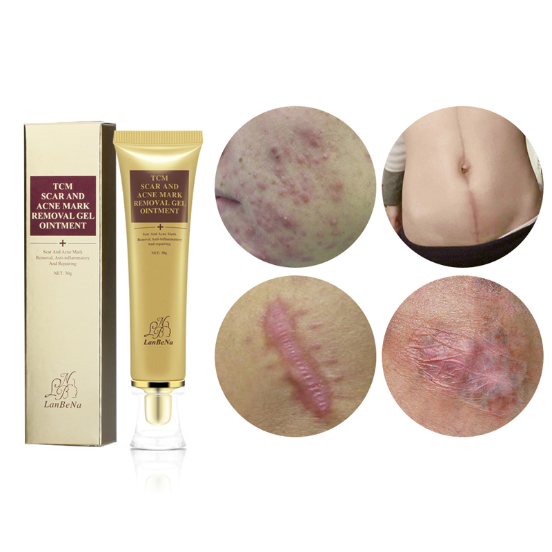 LANBENA Remove Acne Scars Repair Gel Red Spots Face Cream Moisturizing Skin Care Remove Blackhead Whitening Cream Stretch Marks