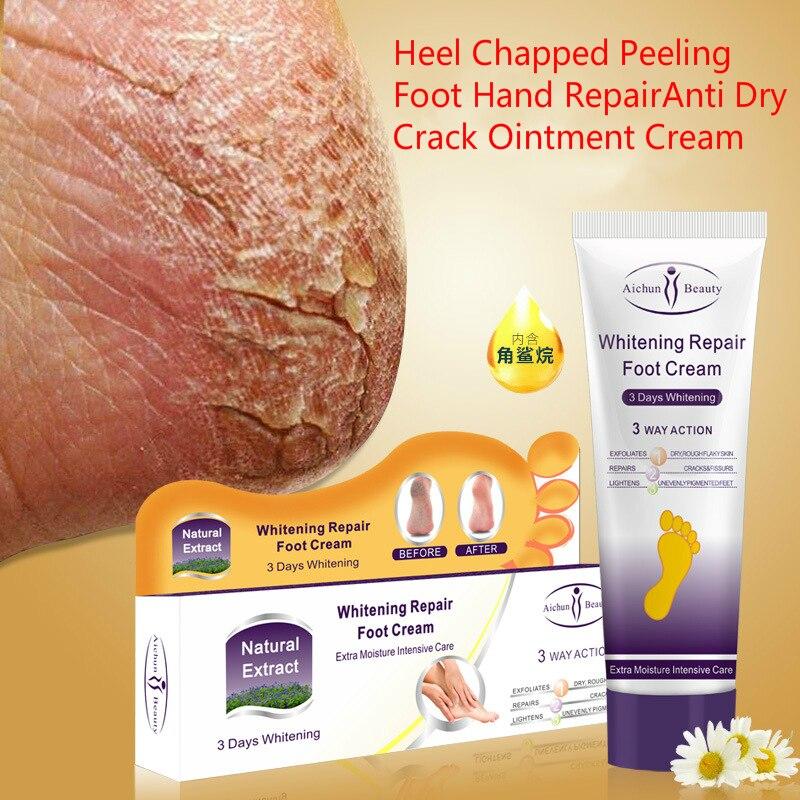 Aichun Ferse Rissige Peeling Fuß Hand Reparatur Anti Trockenen Riss Salbe Creme 100g Haut Feuchtigkeitsspendende Reparatur Creme